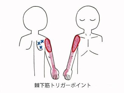 痛い が 甲骨 肩 付近